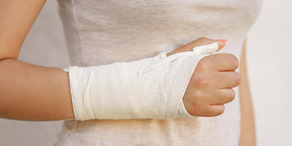 How to Speed up Your Recovery from a Scaphoid Fracture