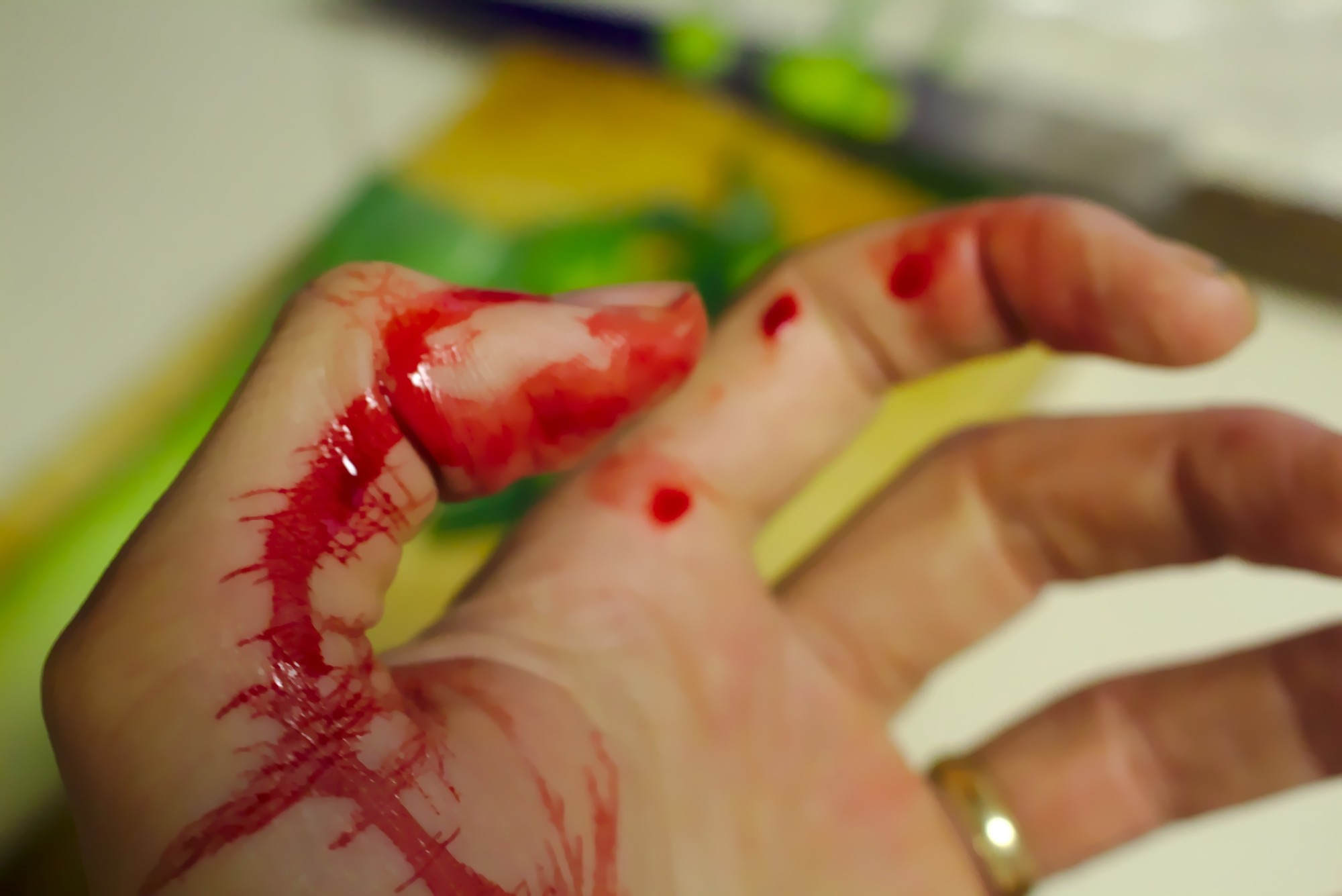 Act Fast and Prevent Infection: How to Clean a Cut Hand